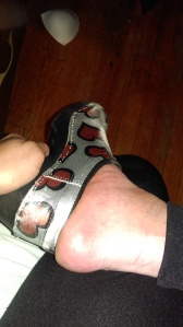 Image of right foot.  Trying to put on silver clogs, which are wore out and scratched from toe dragging while walking with crutches.